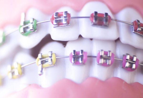 braces-orthodontist Pine Ridge Dental Zimmerman, Minnesota